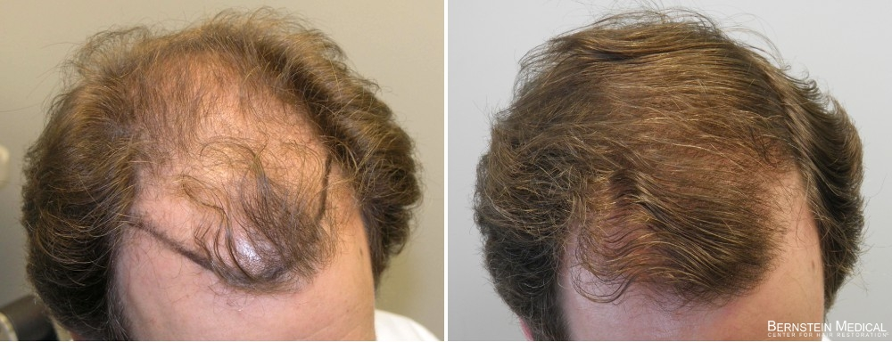 Hair transplant results after 3 years