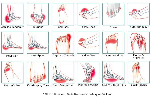 Overweight top of foot pain