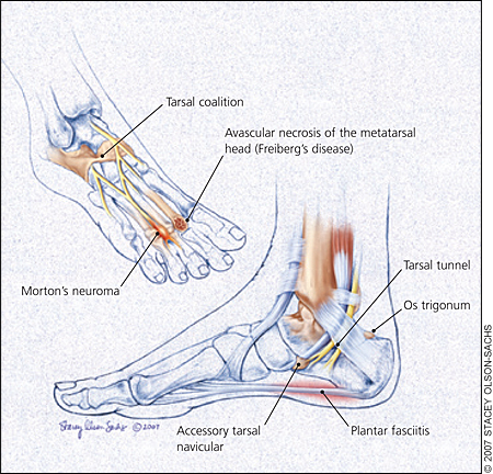 Pain Around Fifth Metatarsal When Wearing Shoes