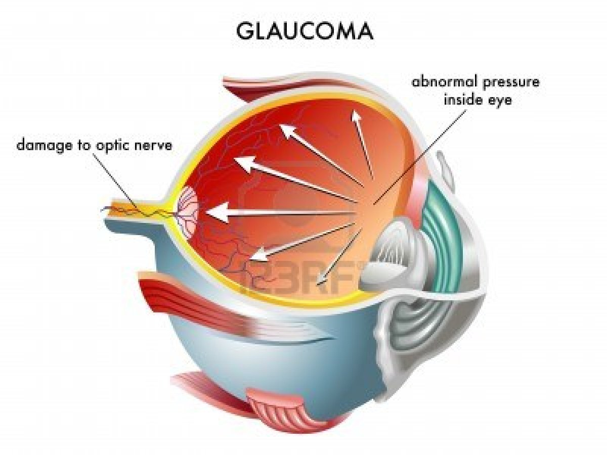 Glaucoma (Chronic Open Angle). Causes, symptoms, treatment