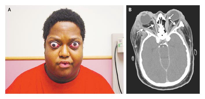 graves disease Graves' disease is the most common autoimmune condition in the us it is characterized by an overactive thyroid gland and the.