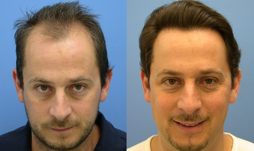 hair transplant is a surgical procedure to improve baldness Celebrity Hair Transplant Scar
