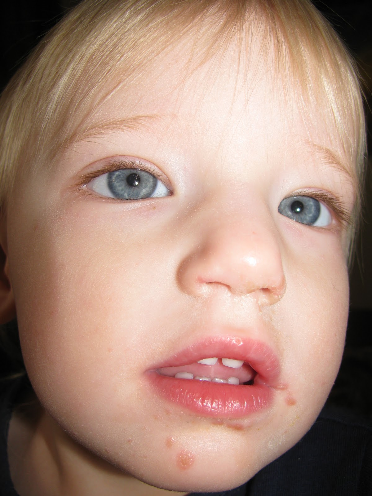 What is hand, foot and mouth disease?