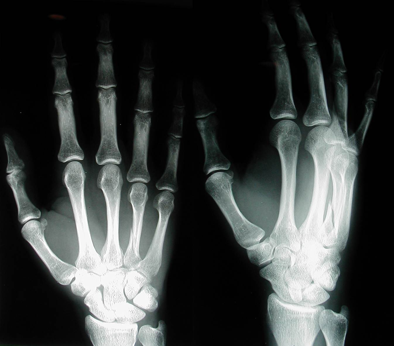 Hand x-ray. Causes, symptoms, treatment Hand x-ray