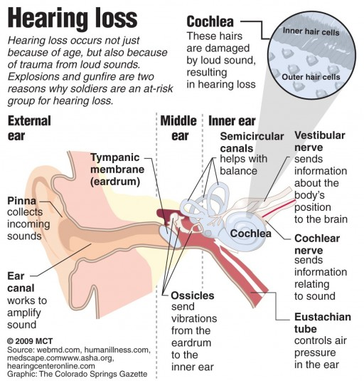 Hearing Loss on One Side