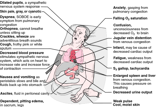 an overview of the causes types symptoms and treatment of congestive heart failure chf In most cases, the treatment for congestive heart failure and other types of heart failure is directed toward relieving its symptoms and it may involve the usage of the following drugs: diuretics, ace, digoxin the prevention of congestive heart failure depends on what might cause it in the first place.