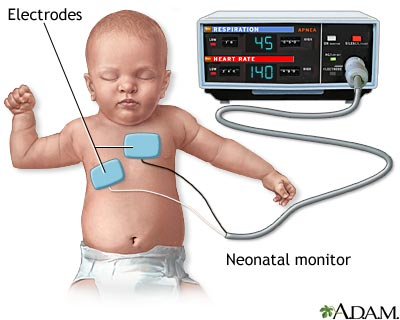 Heart Respiratory Monitor Infants Causes Symptoms