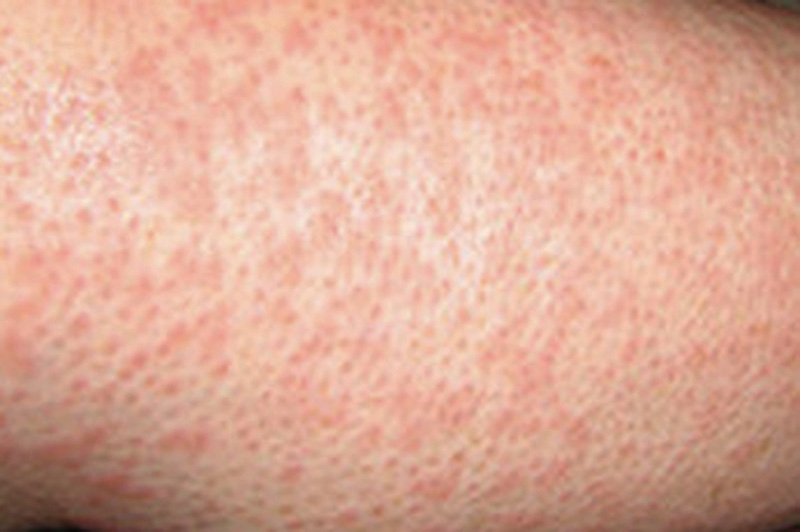 Heat Rash Causes Symptoms Treatment Heat Rash