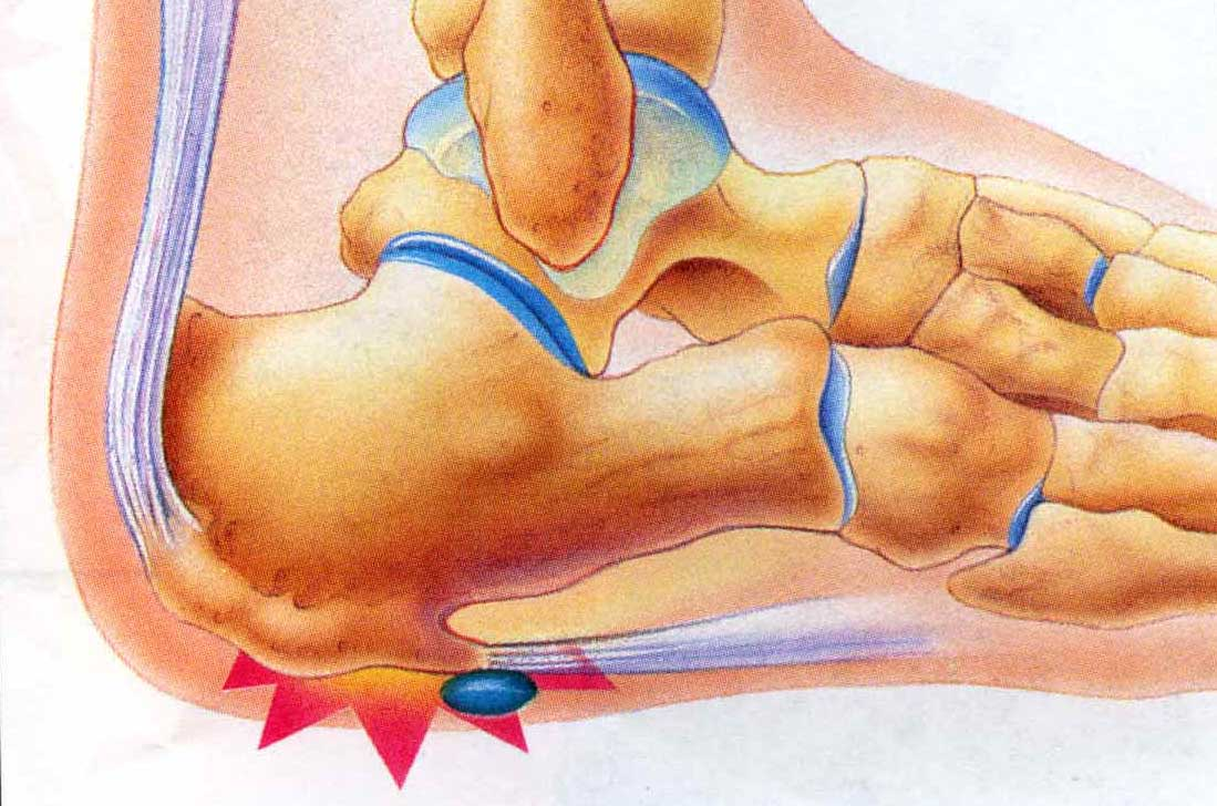 Heel pain. Causes, symptoms, treatment Heel pain