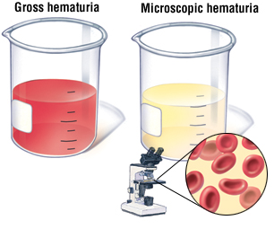 Hematuria. Causes, symptoms, treatment Hematuria