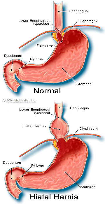 Hernia - hiatus. Causes, symptoms, treatment Hernia - hiatus