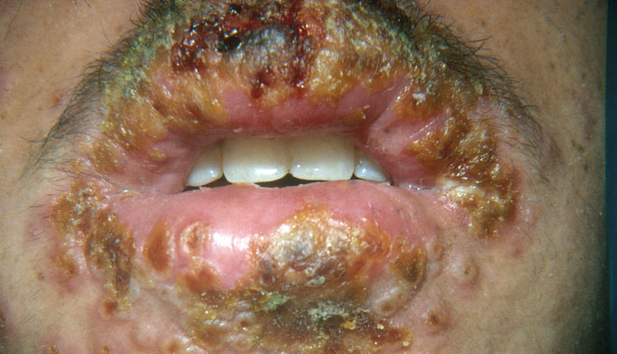 Herpetic whitlow: Herpetic infections of the digits