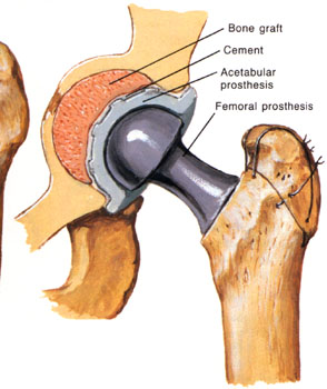 Hip joint replacement is surgery to replace all or part of the hip ...