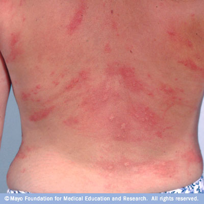 Why do hives itch? - Quora