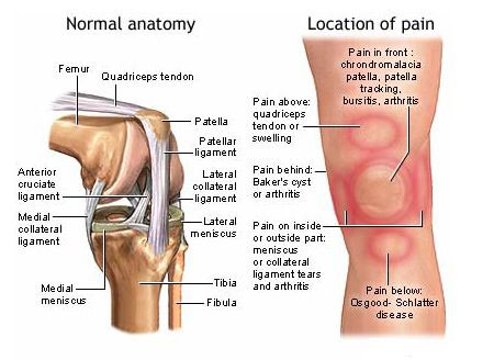 Natural Cure For Fluid On The Knee