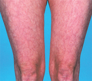 Hughes Syndrome Antiphospholipid Syndrome Causes