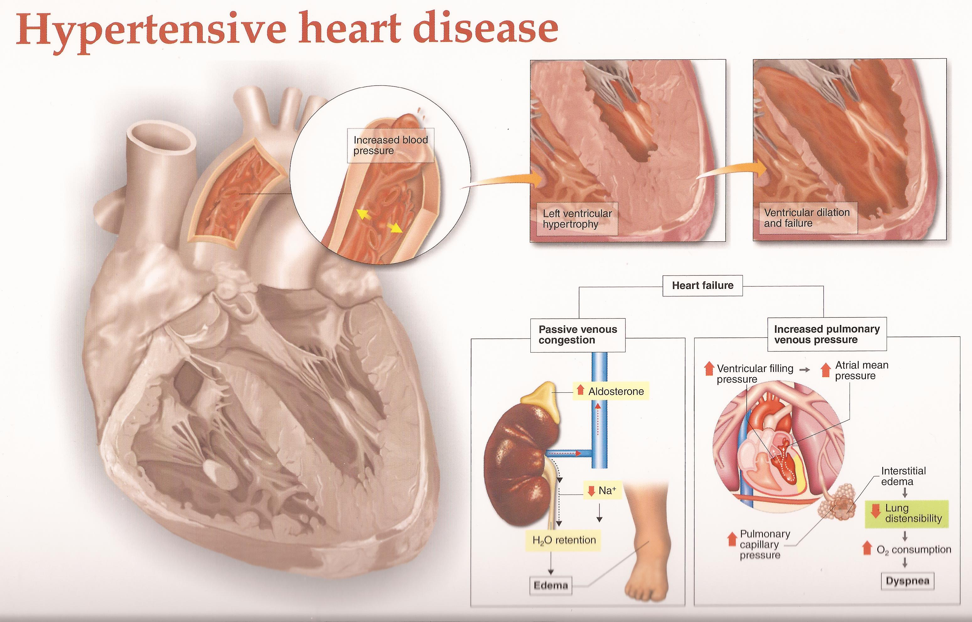 a description of a hypertension disorder Circulatory system diseases lessons coronary artery disease atherosclerosis, arteriosclerosis, and arteriolosclerosis hypertension effects on the blood vessels.