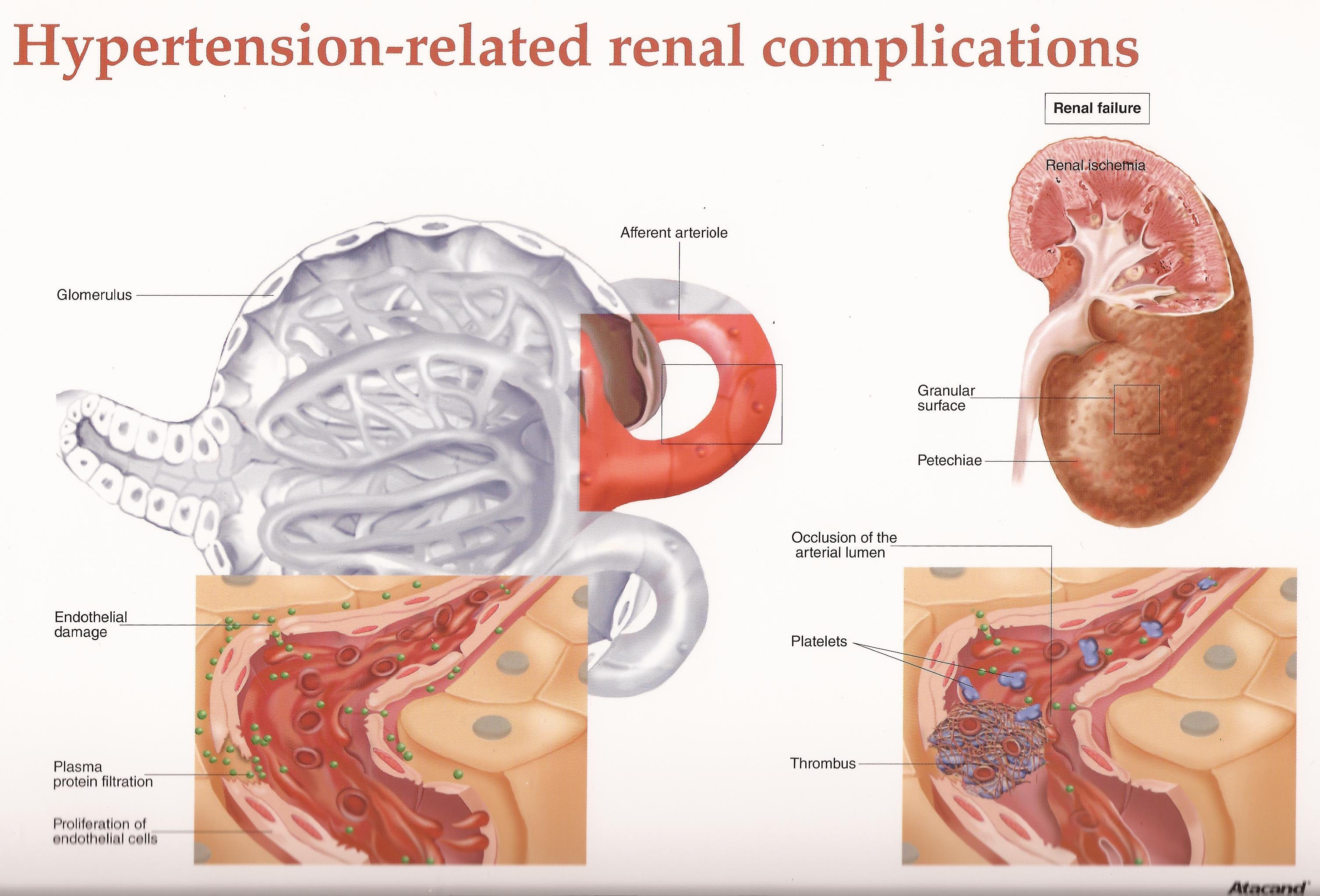 how renal problems cause hypertension