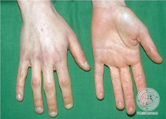 hypervitaminosis a causes symptoms treatment