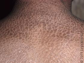 Ichthyosis vulgaris causes symptoms treatment for Fish scale disease