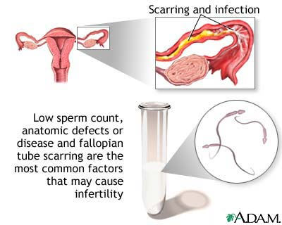 infertility causes and treatments essay Free essay: premature ovarian failure, a cause of ovulatory dysfunction, is a disorder believed to be due to genetic abnormalies which leads to the faster infertility treatments: is it ethical essay 1015 words   5 pages (womenshealth gov) medicinal and technological treatments are often used together.