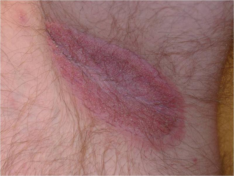 Jock Itch  Causes, symptoms, treatment Jock Itch