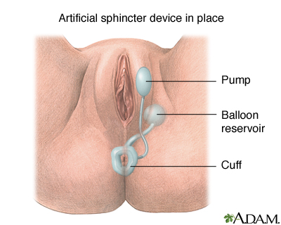 How to tighten anal sphincter