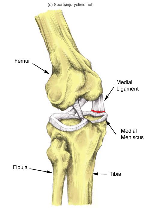 Knee Injury - Meniscal Cartilage Tear. Causes, symptoms, treatment ...