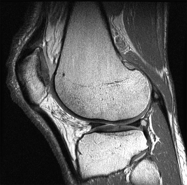Knee MRI scan. Causes, symptoms, treatment Knee MRI scan