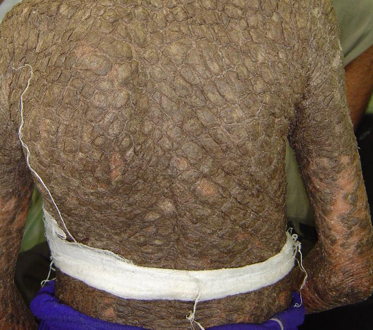 ichthyosis vulgaris how to get rid off