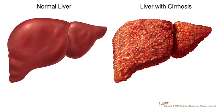 cirrhosis of the liver causes and Worldwide, hepatitis b is the most common cause of cirrhosis, but in the united states hepatitis c is a more common cause biliary cirrhosis: bile is a substance produced by the liver to help the body digest fats .