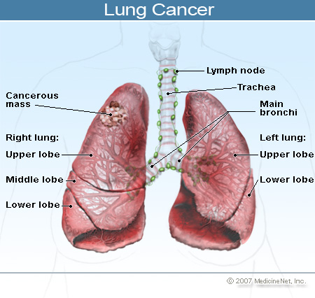 the two major types of lung cancer Which is the most dangerous and nasty type of cancer update cancel  there are two major types: non-small cell lung cancer, which is the most common,.