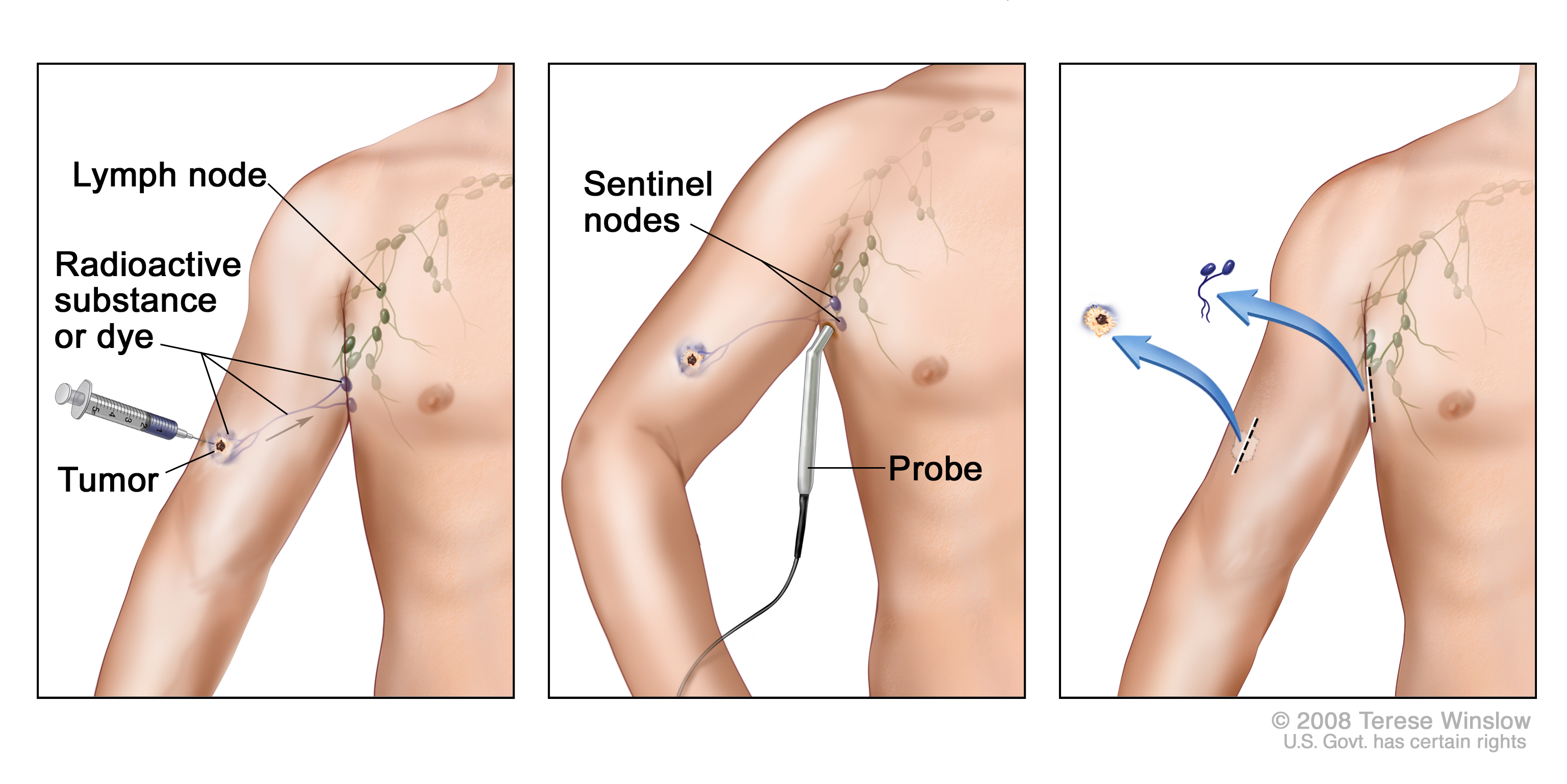 Lymph node removal lymphadenectomy causes symptoms treatment lymph node removal lymphadenectomy ccuart Images