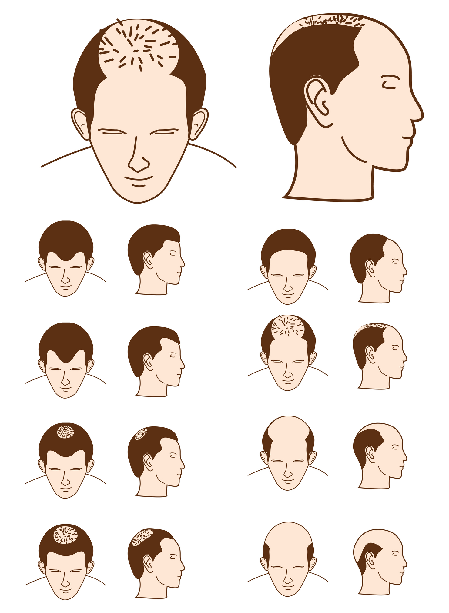Male Pattern Baldness. Causes, symptoms, treatment Male ...
