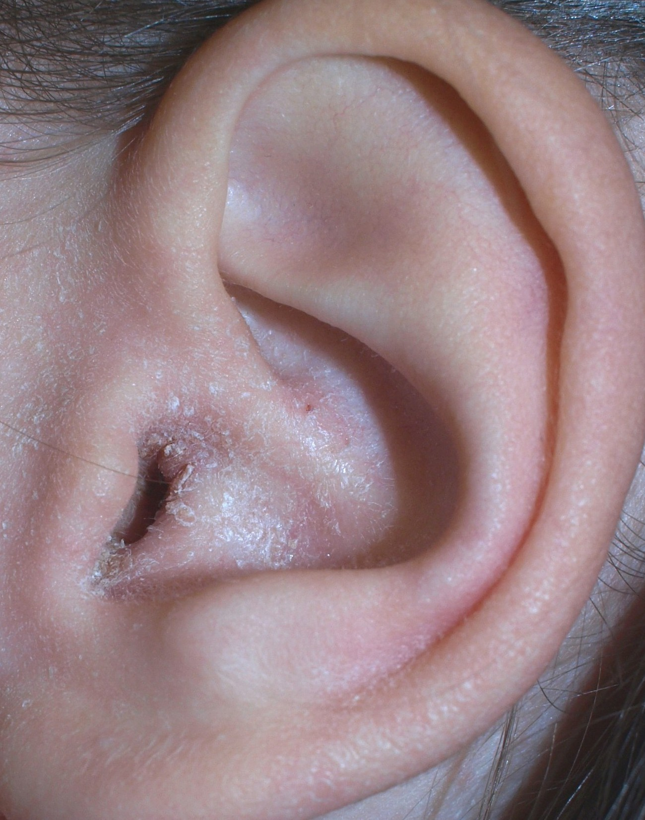 In ear infection adult symptom