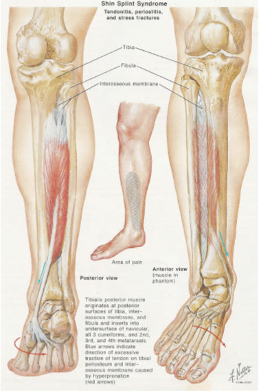Medial Tibial Stress Syndrome. Causes, symptoms, treatment ...