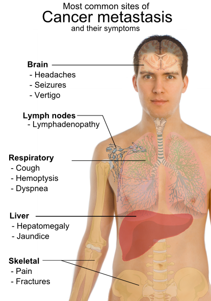 Image Result For Overview Of Stage Lung Cancer Symptoms