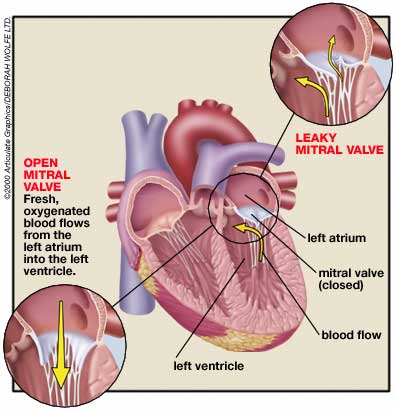 mitral valve prolapse The exact cause of mitral valve prolapse is now known, but being keenly aware of common mvp symptoms can help prevent or delay related complications.