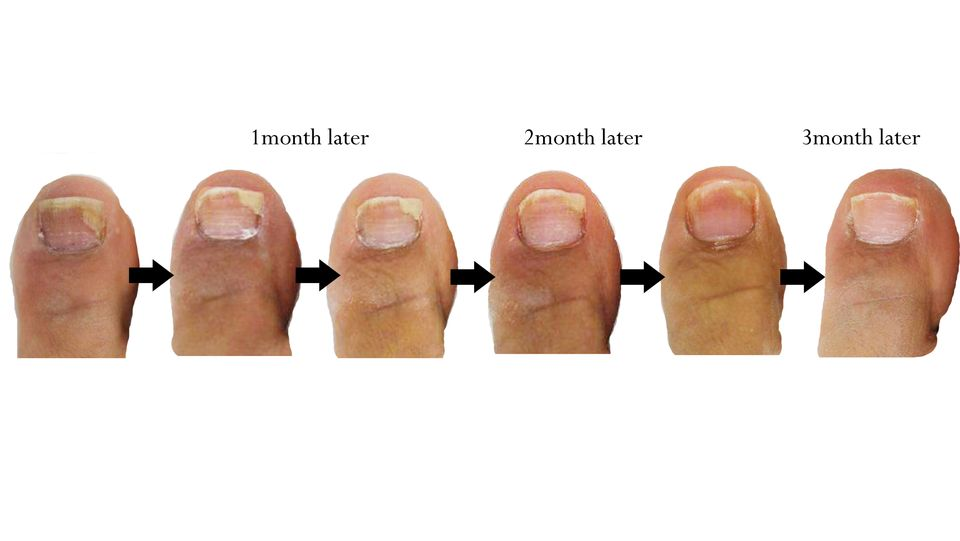 Nail Infection Fungal Causes Symptoms Treatment Nail