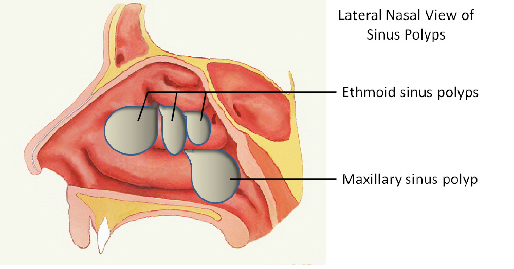 Sinus Signs And Symptoms In 2 12 Months Old