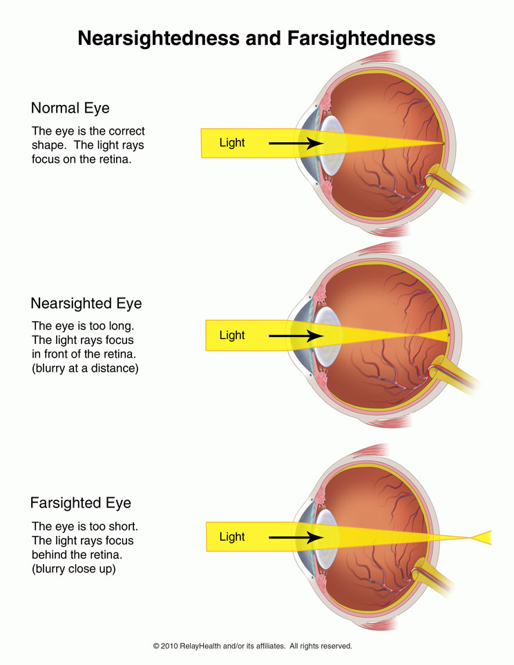 eye diseases nearsightedness Myopia is the term used to define short sightedness and hypermetropia defines  long sightedness find out more about the eye conditions here.