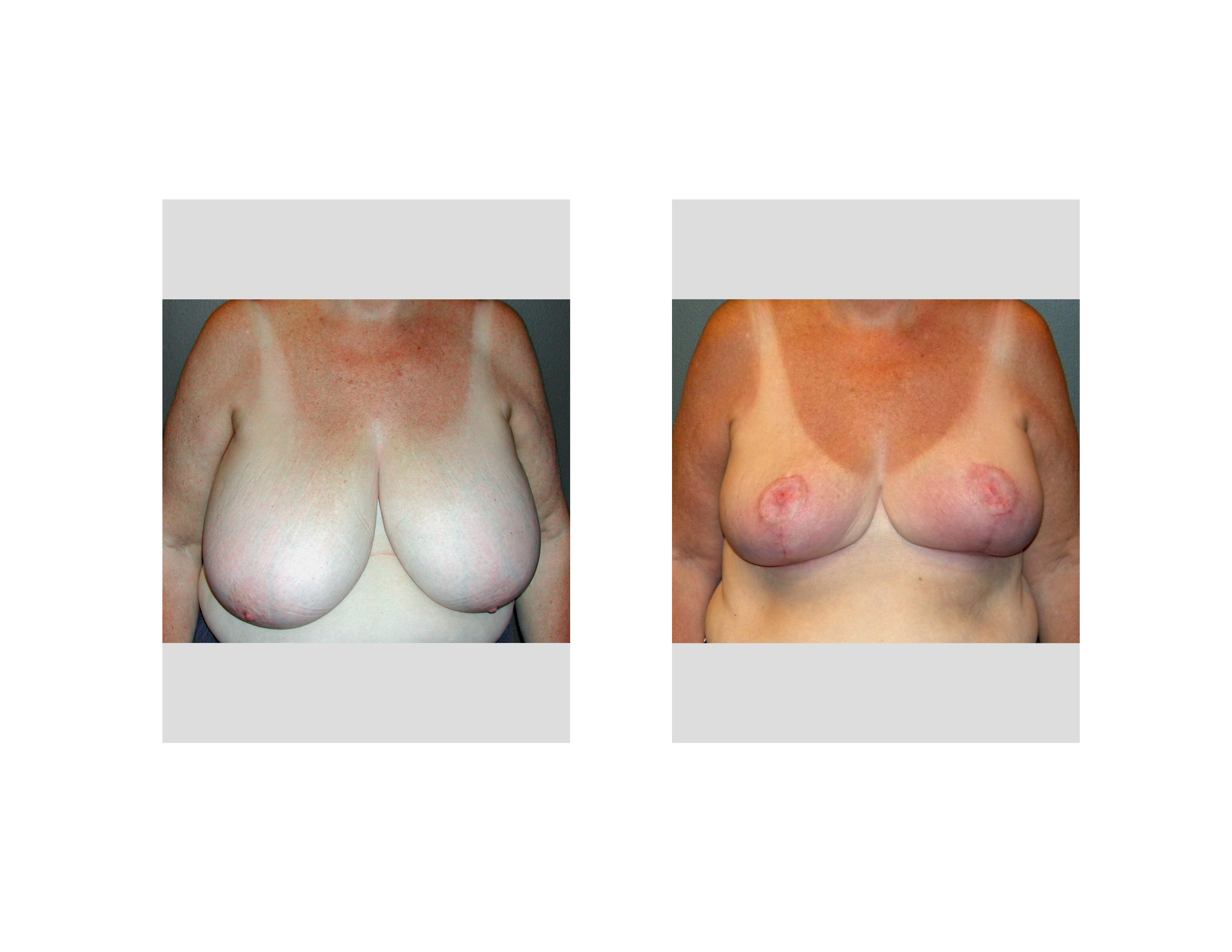 Common breast problems - UpToDate