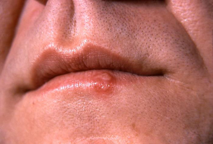 treatment for oral herpes