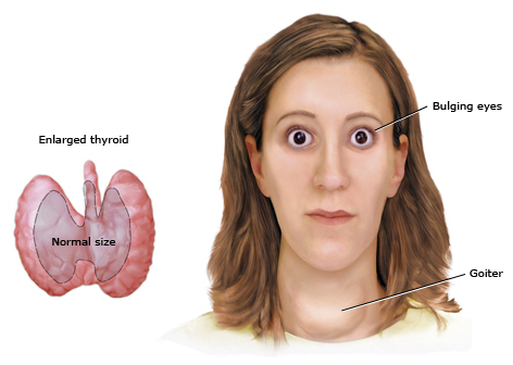 overactive thyroid