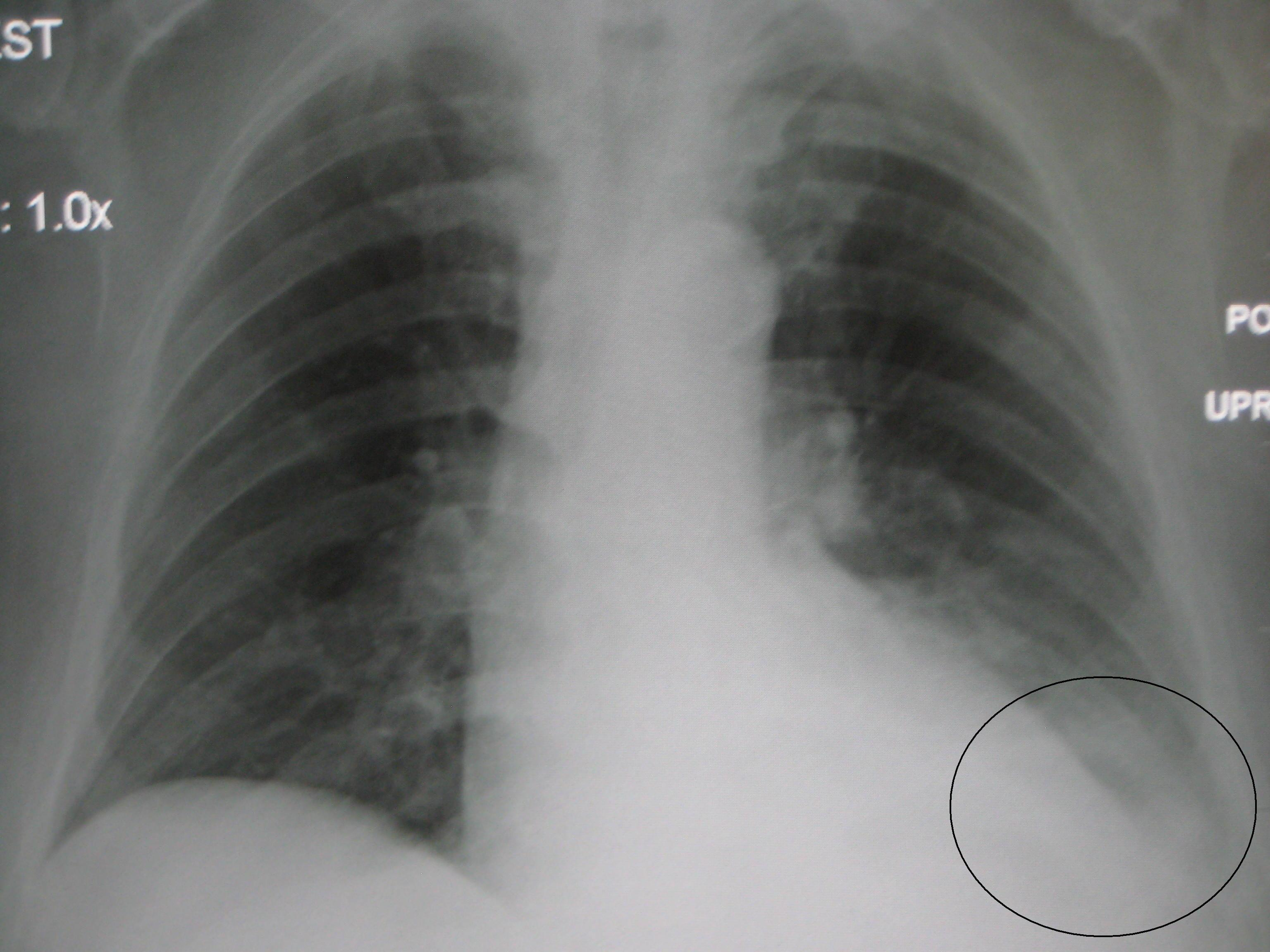 how to get rid of fluid in lungs from pneumonia