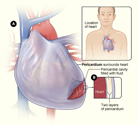 Pericarditis Bacterial Causes Symptoms Treatment