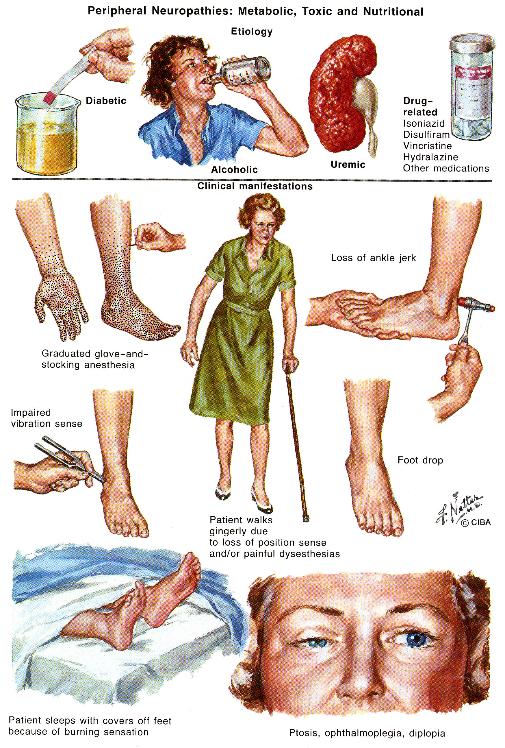 Peripheral Neuropathy. Causes, symptoms, treatment ...