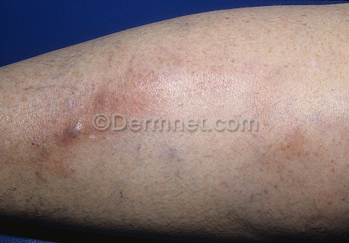 Clomid Causing Thrombophlebitis