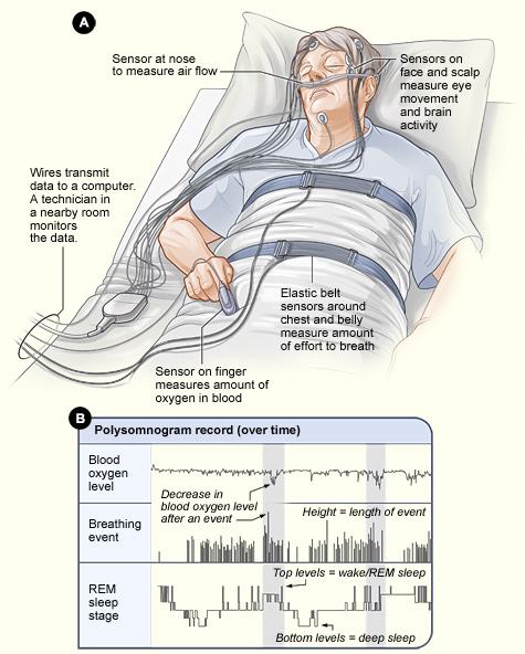 Can a Sleep Study Be Done At Home - Recent blog
