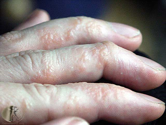 eczema hands blisters - photo #14